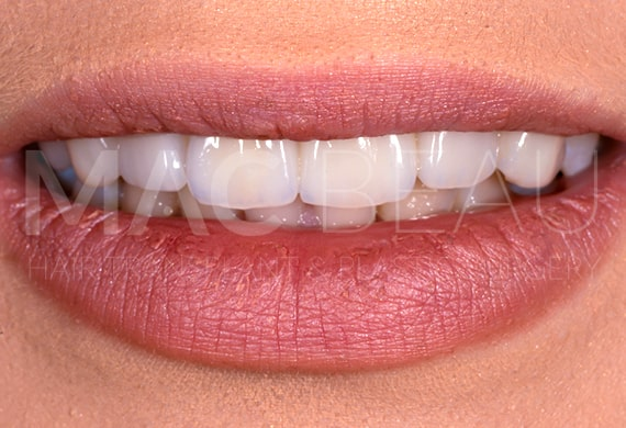 تيجان الأسنان الزركونيوم